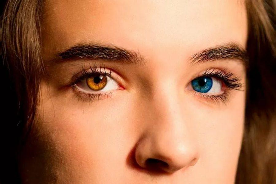разные глаза