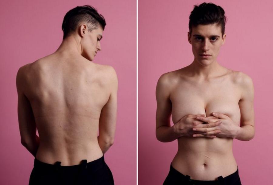 интерсексуал с грудью