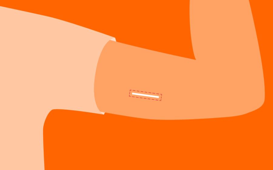противозачаточный имплант